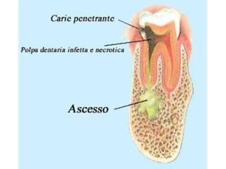 _dentalDam_carie_3.jpg