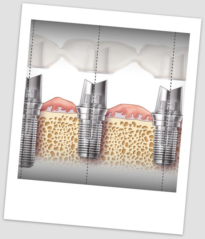 Implantologia  Studio Dentistico Calore  Padova
