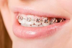 immagine relativa all'ortodonzia nei bambini