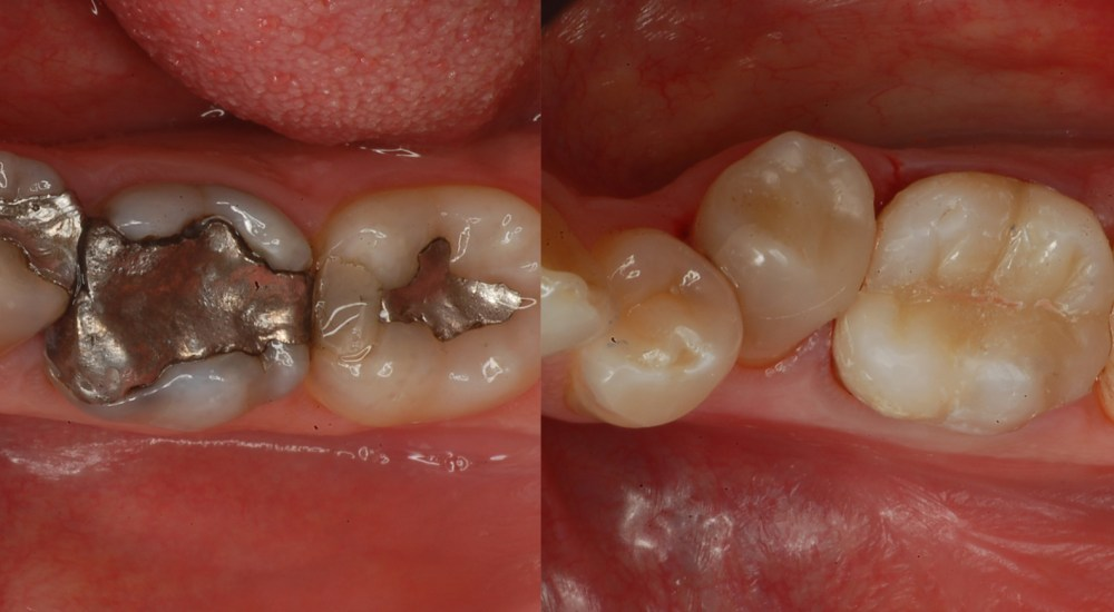odontoiatria conservativa - studio dentistico Dalla Corte e Forcellini