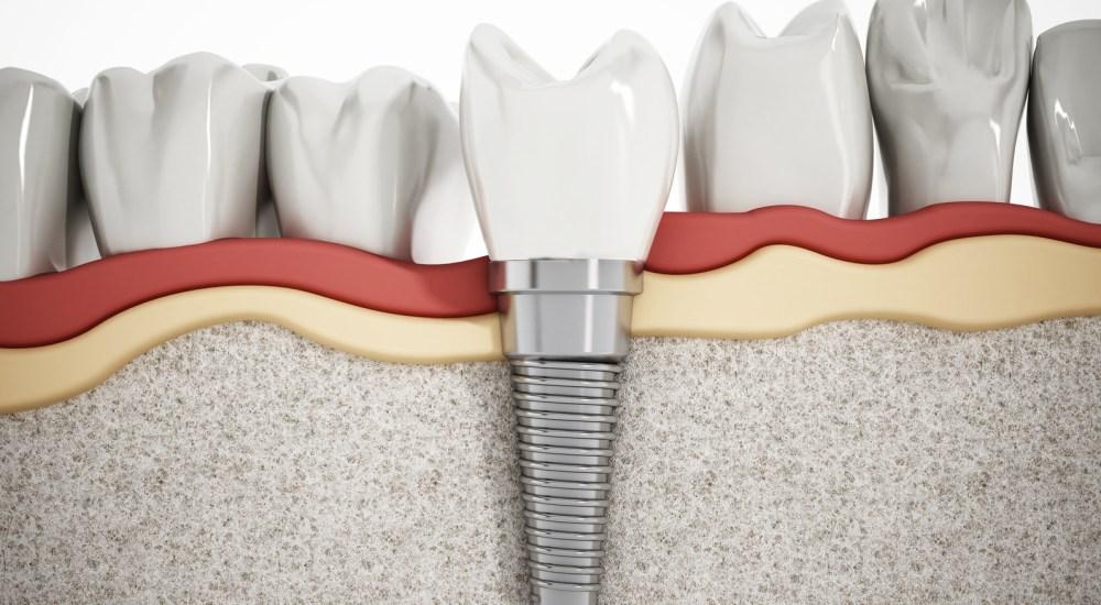 impianti dentali - studio dentistico dalla corte forcellini