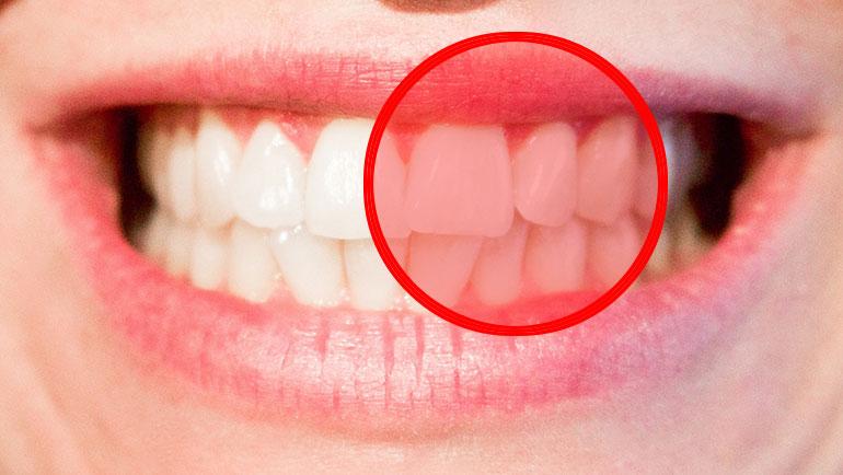 Parodontite, la prevenzione dei Verdenti