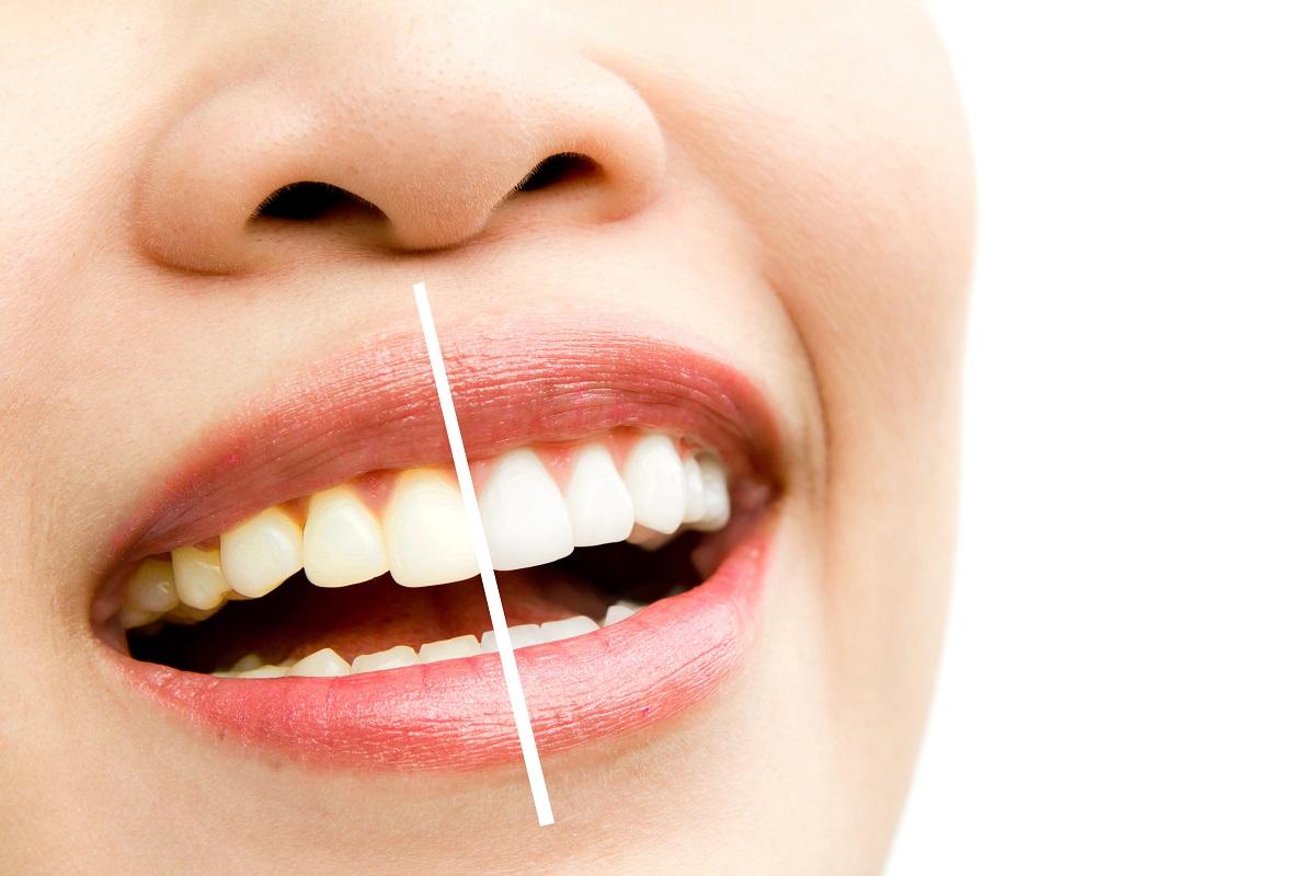 Denti ingialliti, come prevenire e curare questo inestetismo