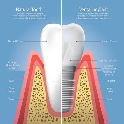 Titanio negli impianti dentali