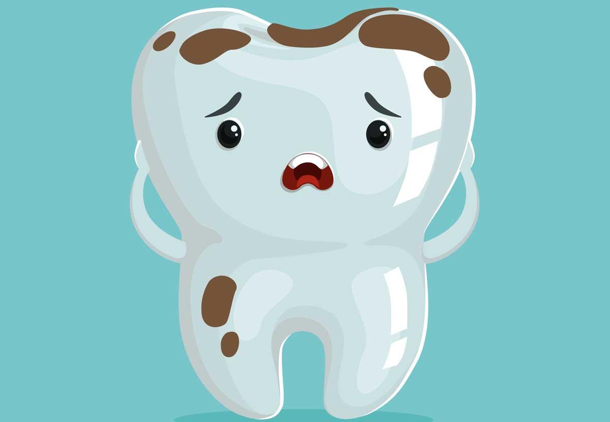 macchie nere sui denti