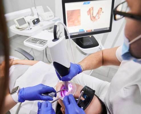 scanner intraorali