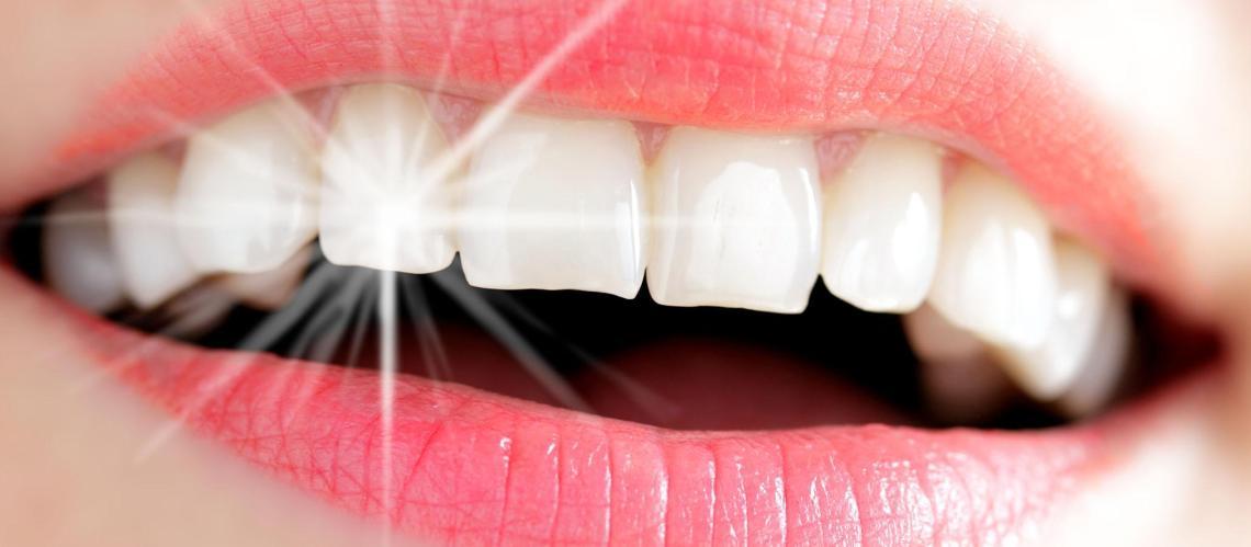Studio Dentistico Pagliari | Estetica Dentale | Dentisti in Parma Soragna Fidenza Fontanellato Fiorenzuola