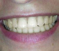 prima-sbiancamento-denti-1