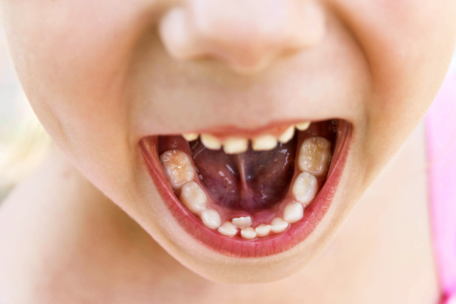 logopedia e posizione dei denti