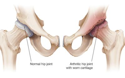 Artrosi dell'anca lieve-moderata: implicazioni muscolari.