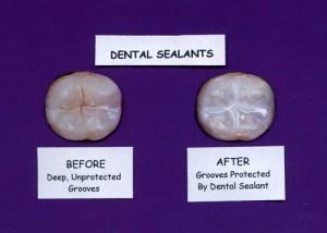 dental-sealants-visual