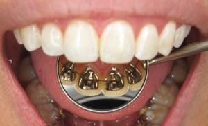apparecchio ortodontico per adulti
