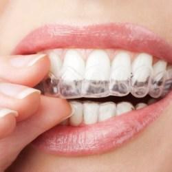 sbiancamento dentale domiciliare