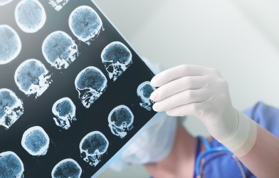 Doctors looking at brain imaging scans