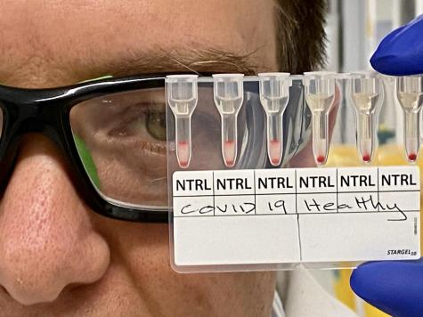 Coronavirus blood test
