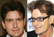 famous celebrity hair transplants