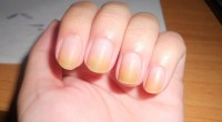 Yellow Nails Remedies - Best Homemade Tips to Treat Yellow ...