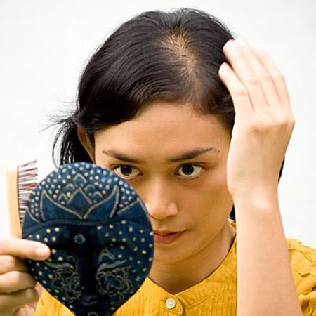 Look after your hair to stop balding