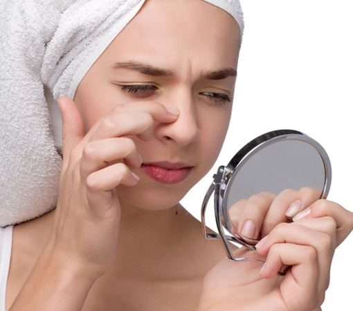 Natural Treatments to remove Blackheads