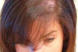 stop Balding Naturally