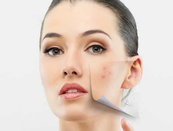 Vitamin E Treats Skin Hyperpigmentation