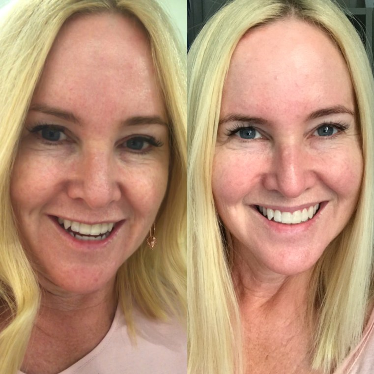 Before and after Dermalogica Pro Power Peel | Styling You Nikki Parkinson
