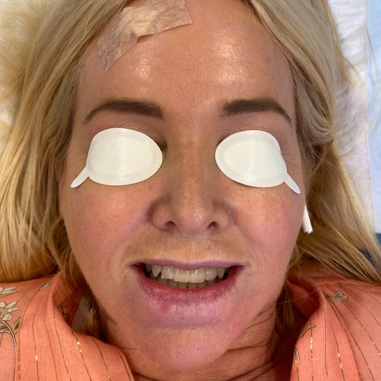 Dental block in: Photo Dynamic Therapy