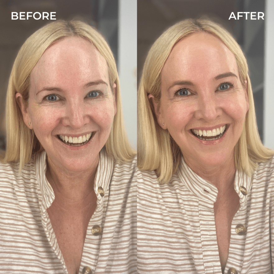 Before and after: Glowy everyday makeup routine featuring Trinny London and MCoBeauty