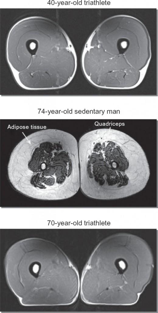 Lårsmuskler träning ålder