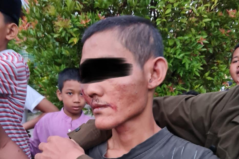 Pelaku Pemukul Imam Masjid Baitul Arsy Pekanbaru,Ditetapkan Tersangka