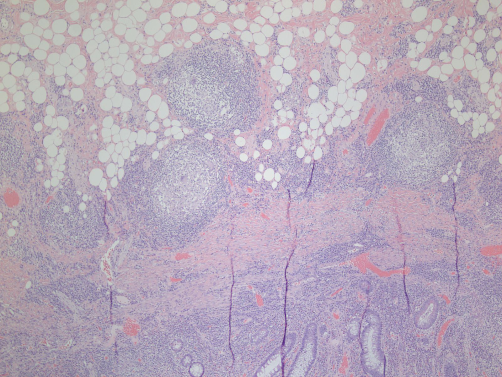 Non-caseating Granuloma in Colon Specimen