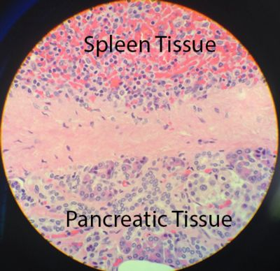Microscopic view of Intrapancreatic Accessory Spleen