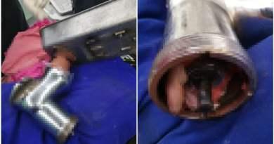 carnicero sufre accidente laboral