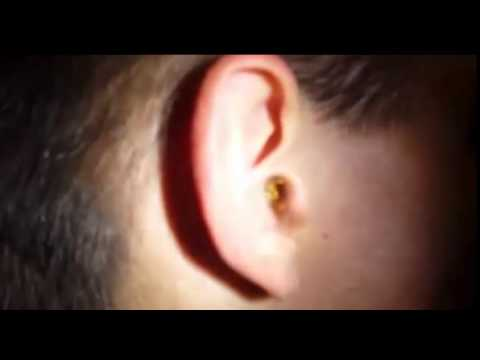 بالفيديو: ماذا حدث لرجل انسدت أذنه من تراكم شمع الأذن؟