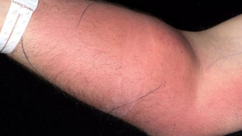 Pour soigner ses maux de dos, il s'injecte son propre sperme dans le bras pendant un an et demi