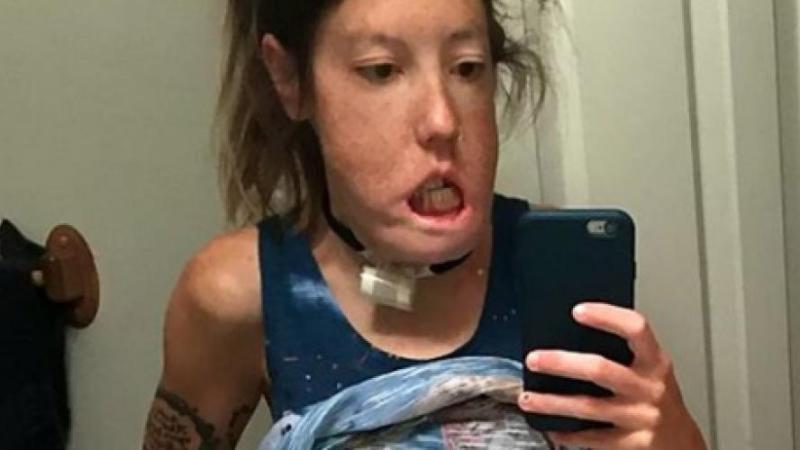 Hannah ne peut plus fermer ni les yeux, ni la bouche: elle accuse les médecins d'avoir accidentellement retiré les nerfs de son visage (photos)