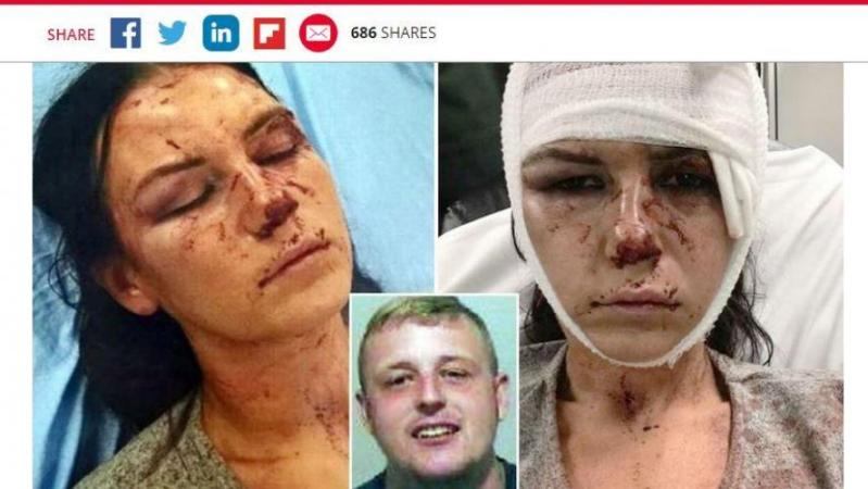 Après avoir passé à tabac sa petite amie, il sort de prison seulement un an après: «Je pensais qu'il allait me tuer» (photo)