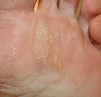 foot callus peel