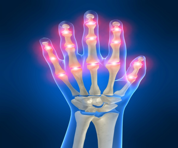 Creaky Joints ? Super Foods to Ease Arthritis !