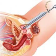 Hiperplasia benigna de próstata cistoscopia