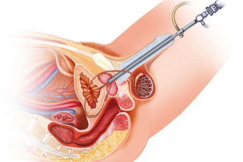 Citoscopia cistoscopia