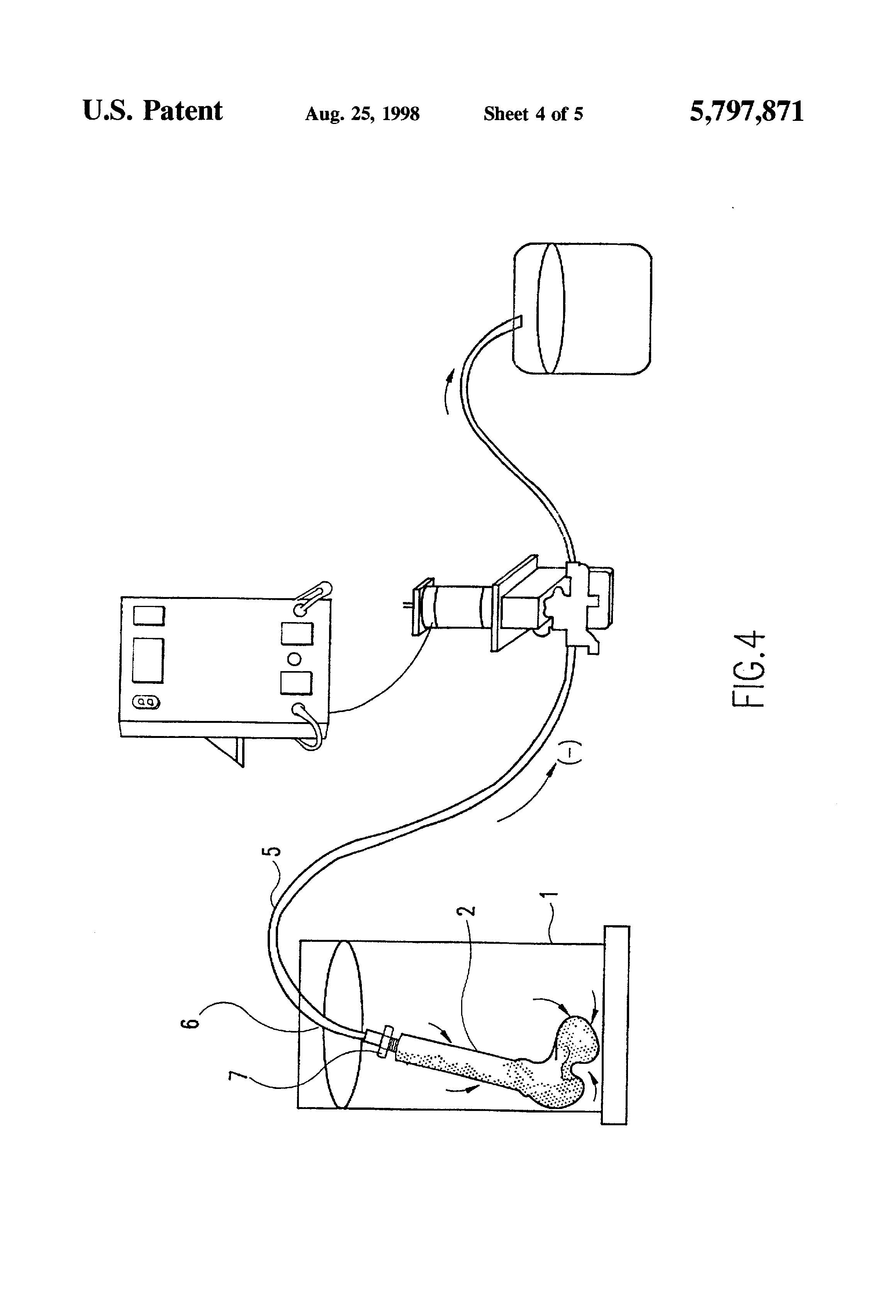Patent of the Day: Ultrasonic Cleaning of Allograft Bone