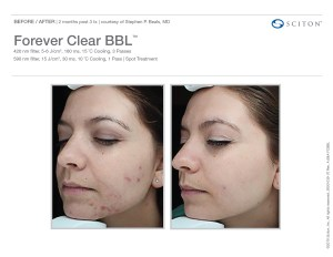 ForeverClear Before/After 2