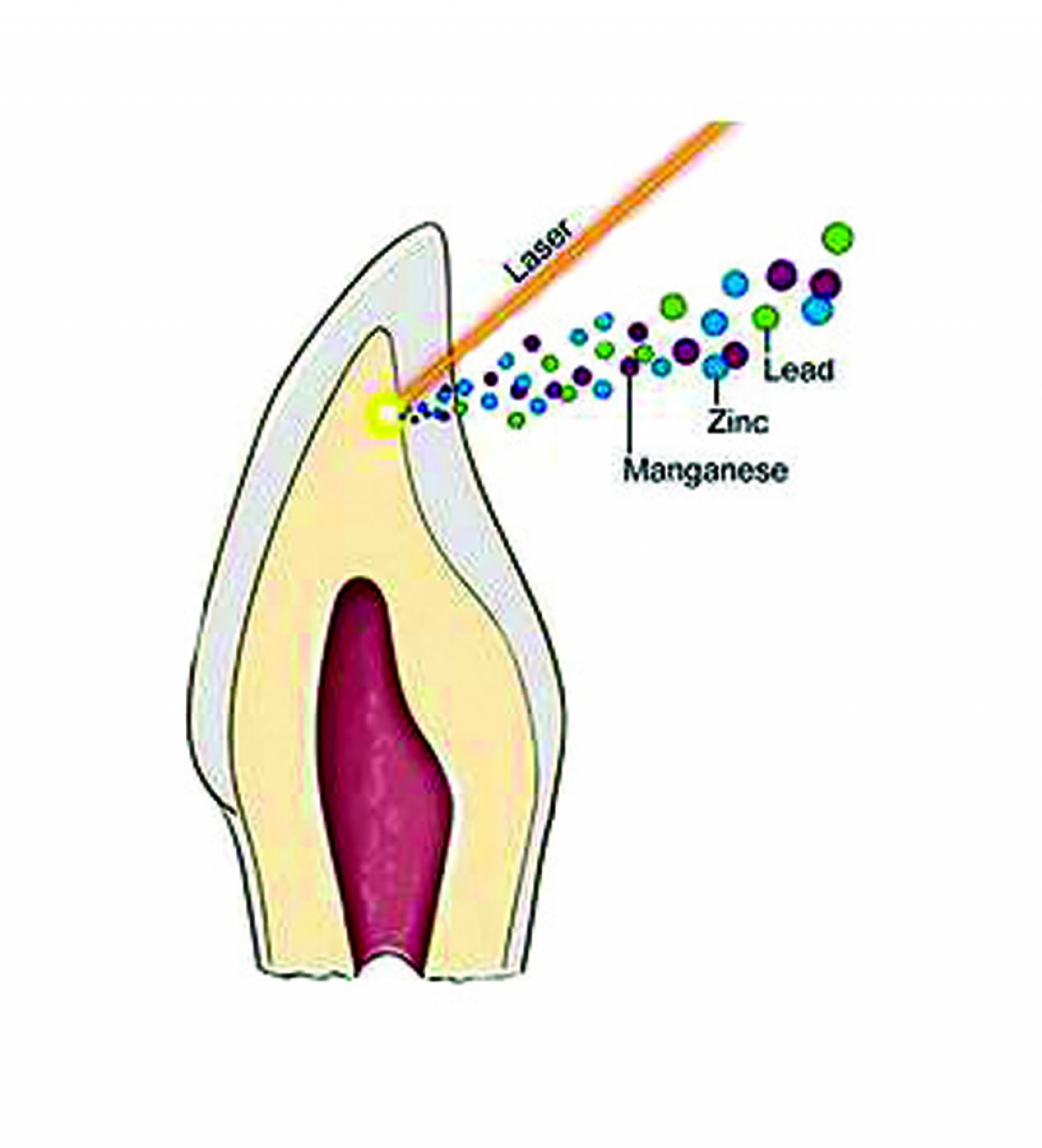 hight resolution of cross section of tooth showing laser removal of the dentine layer in tan