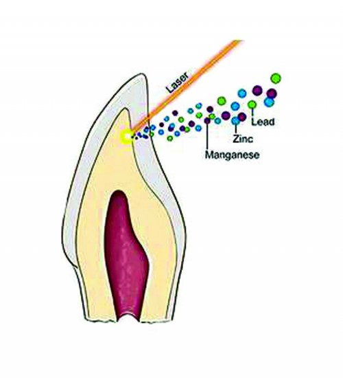 small resolution of cross section of tooth showing laser removal of the dentine layer in tan