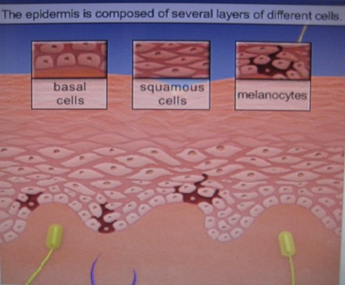 Skin Layers & Skin Cancer Cells