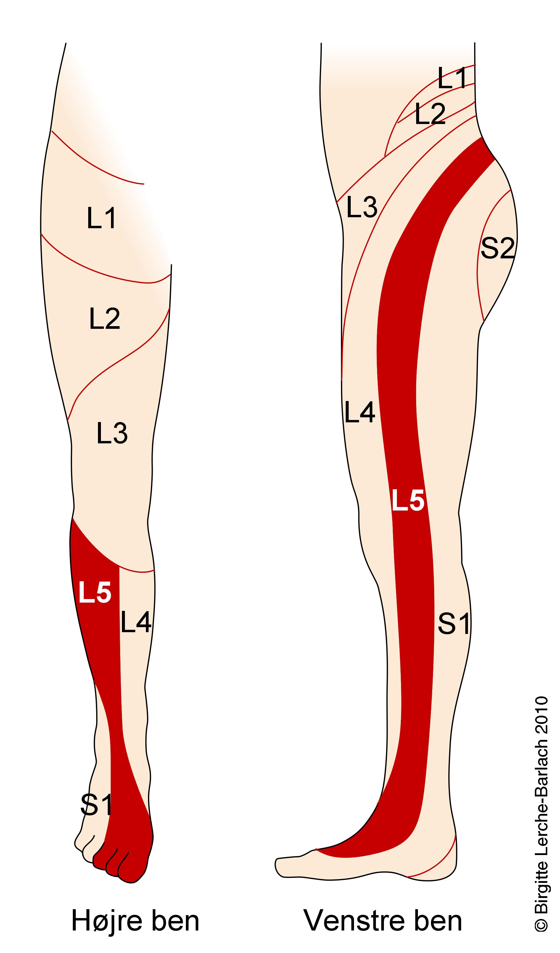 l4 nerve pain diagram vauxhall vectra wiring l2 spine location get free image about