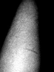 RSD skin destruction
