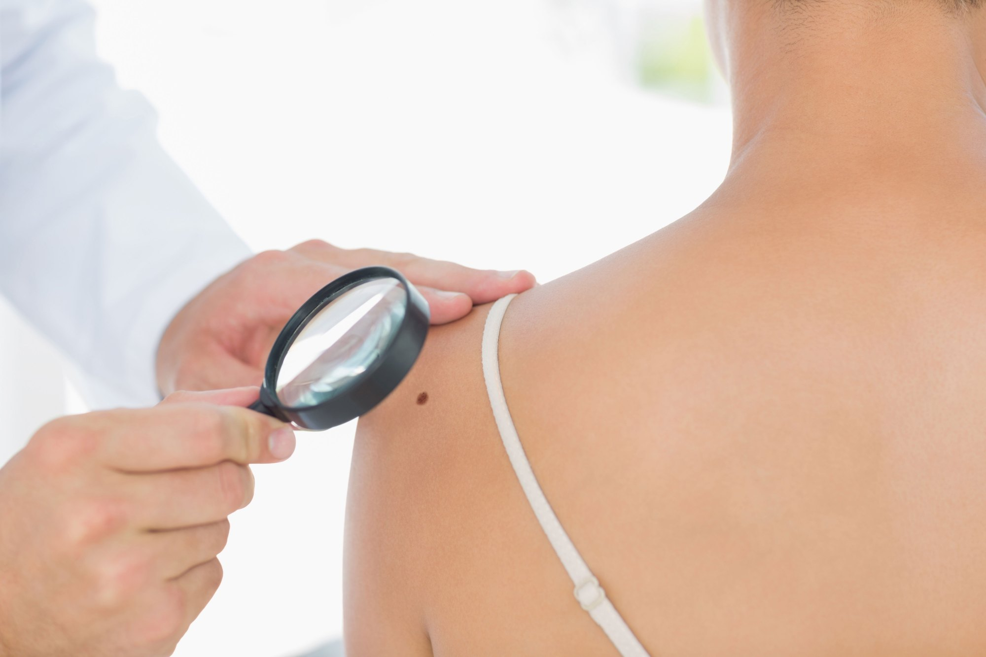 hight resolution of this is not a question that we at sunflower dermatology take lightly one of our primary missions is the eradication of skin cancer