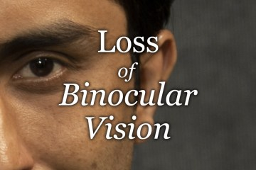 Loss of Binocular Vision